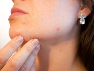 What are acne, its causes, symptoms, effects, and prevention methods