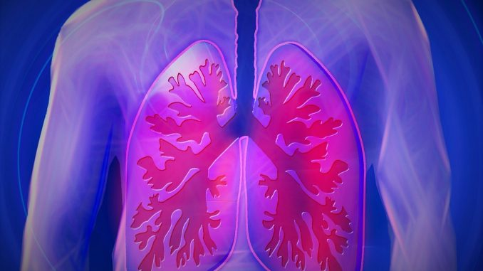 Lung Cancer - Symptoms, Stages, Treatment and Survival Rate.